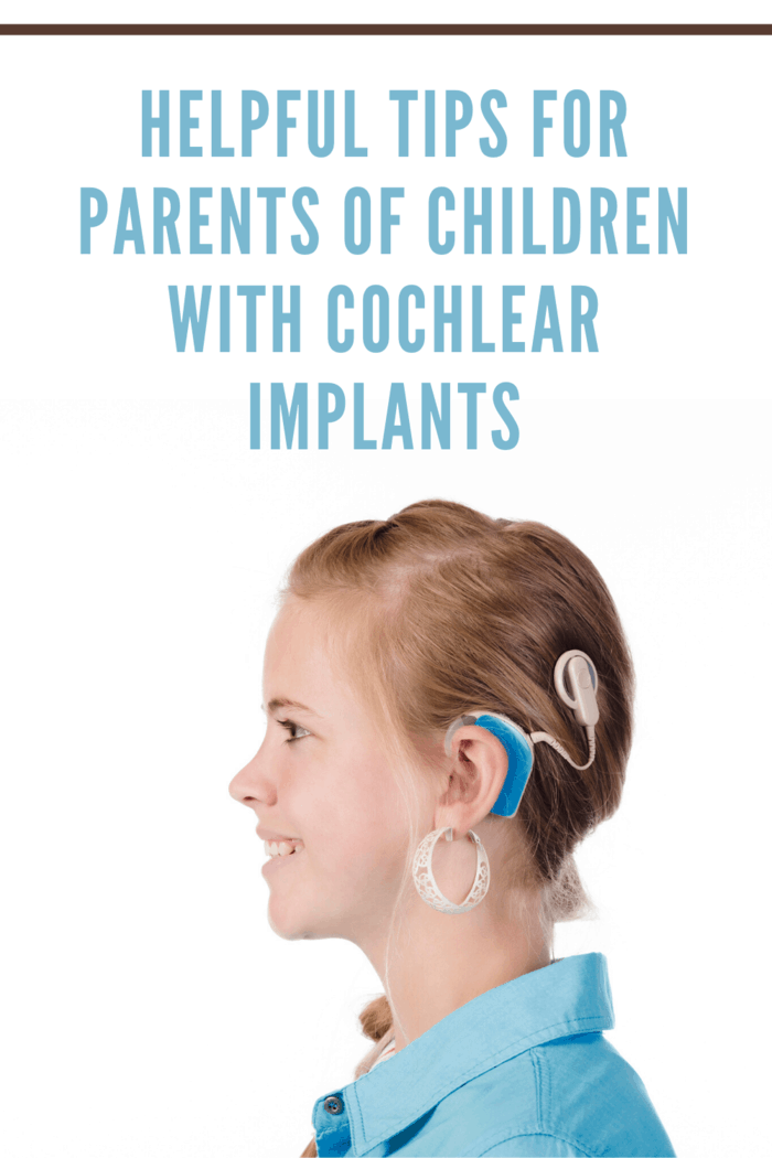 great tips for parents of children with a cochlear implant that will help you become strong and inspiring teachers and supporters for your kids!