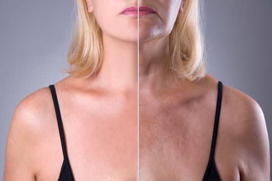 Elastic skin tightens your skin and removes the wrinkles formed. #facelift #wrinkles #benefits