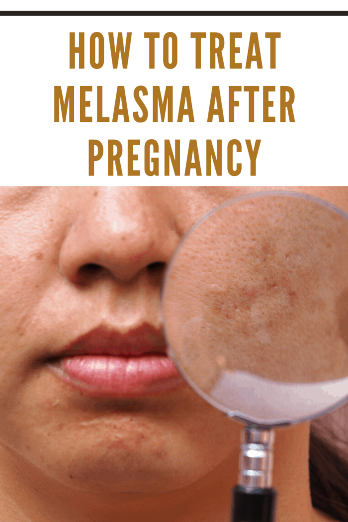 woman with melasma on face holding magnifying glass over it