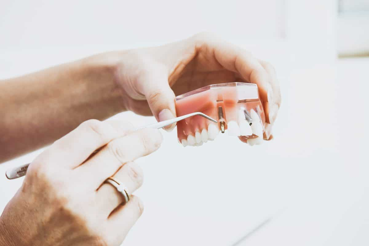 dentist showing type of dental implant on model
