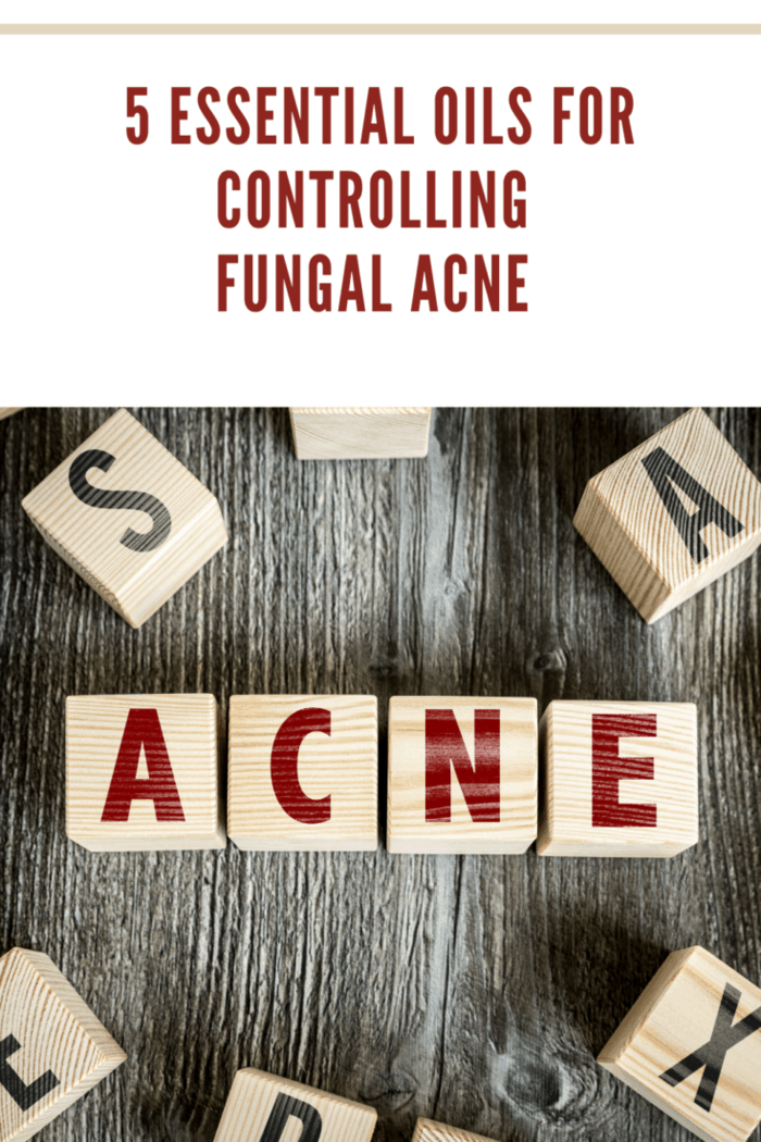 5 Essential Oils For Controlling Fungal Acne